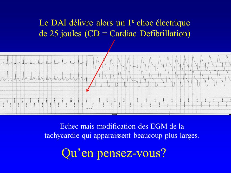 Le DAI délivre alors un 1e choc électrique de 25 joules (CD = Cardiac Defibrillation)