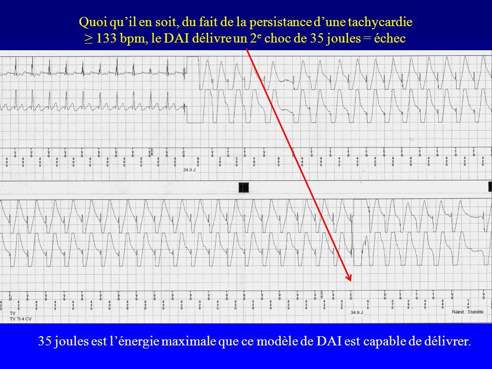 Quoi qu'il en soit, du fait de la persistance d'une tachycardie ≥ 133 bpm, le DAI délivre un 2e choc de 35 joules = échec