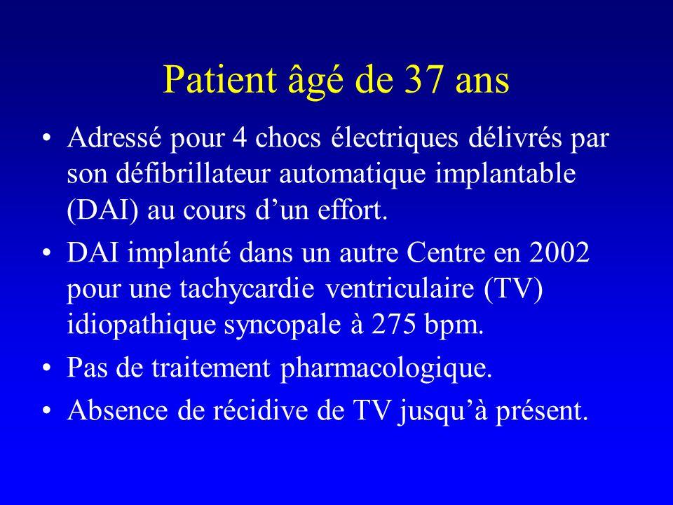 Patient âgé de 37 ans Adressé pour 4 chocs électriques délivrés par son défibrillateur automatique implantable (DAI) au cours d'un effort.