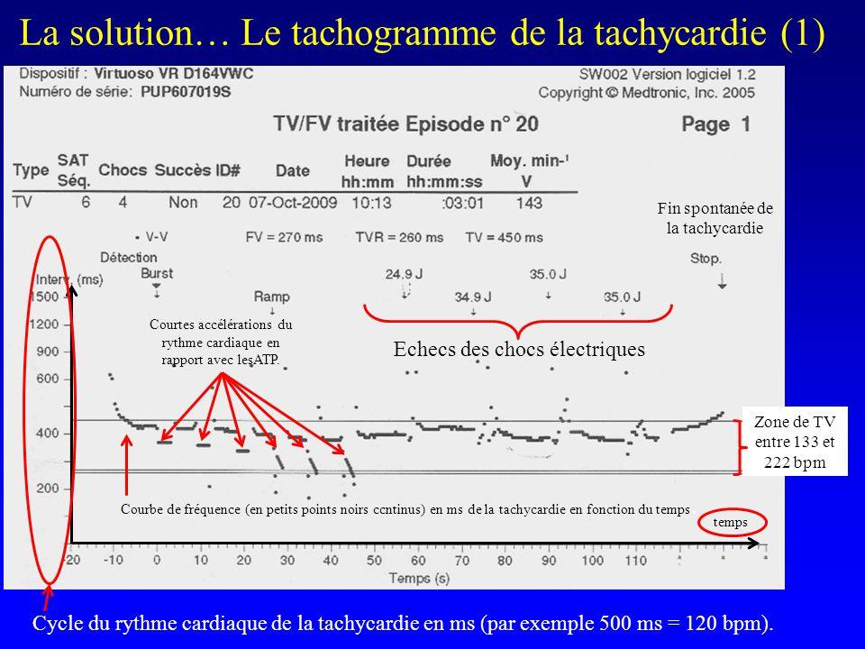 La solution… Le tachogramme de la tachycardie (1)