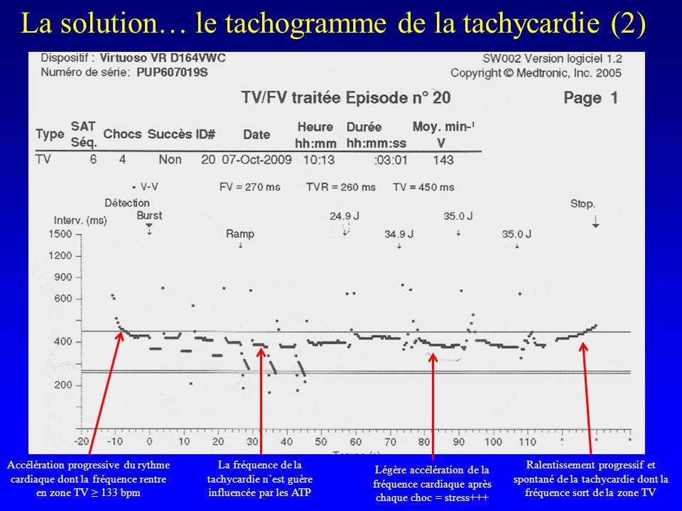 La fréquence de la tachycardie n'est guère influencée par les ATP