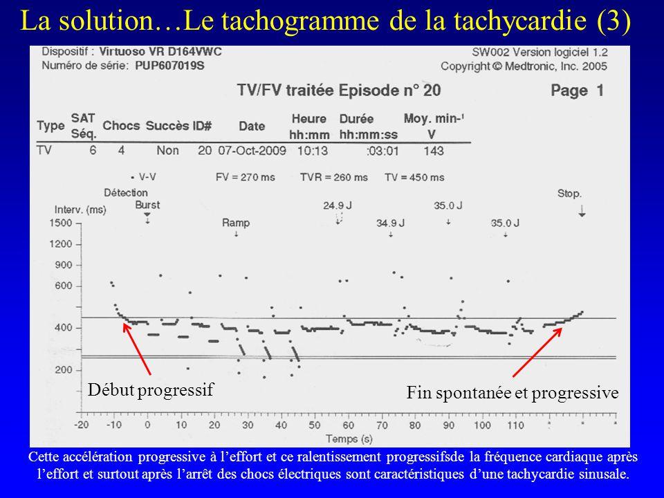 l La solution…Le tachogramme de la tachycardie (3) Début progressif