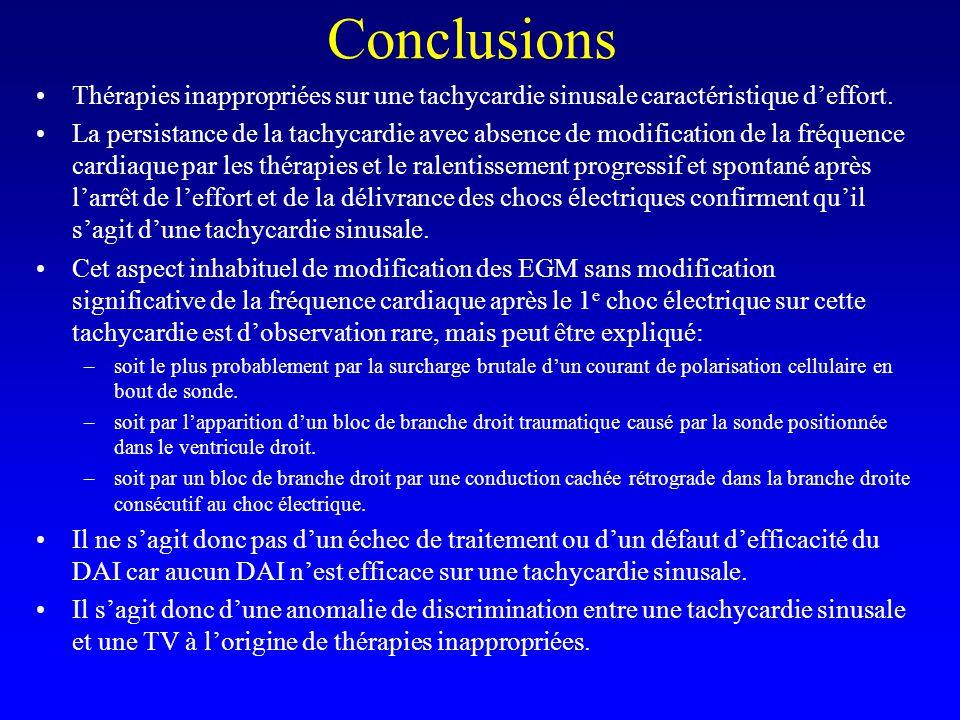 Conclusions Thérapies inappropriées sur une tachycardie sinusale caractéristique d'effort.