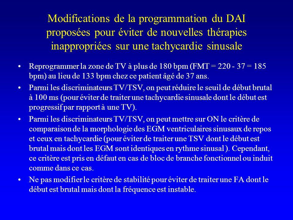 Modifications de la programmation du DAI proposées pour éviter de nouvelles thérapies inappropriées sur une tachycardie sinusale