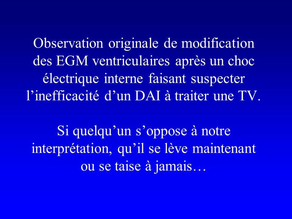 Observation originale de modification des EGM ventriculaires après un choc électrique interne faisant suspecter l'inefficacité d'un DAI à traiter une TV.