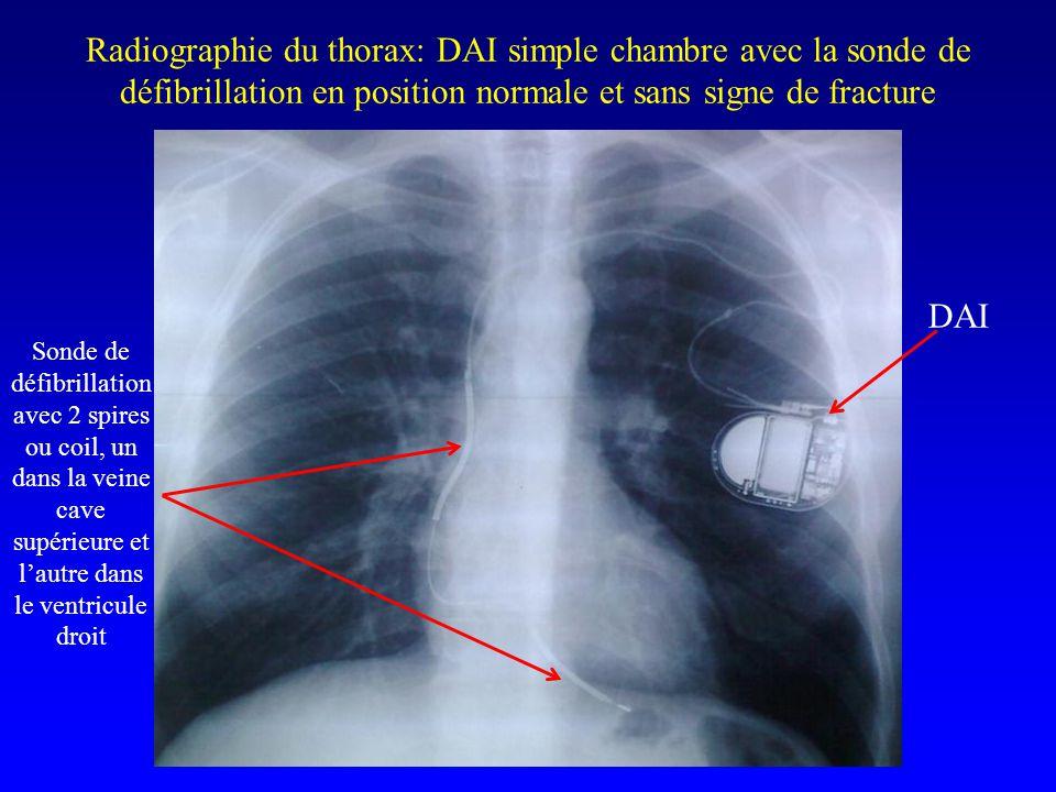 Radiographie du thorax: DAI simple chambre avec la sonde de défibrillation en position normale et sans signe de fracture