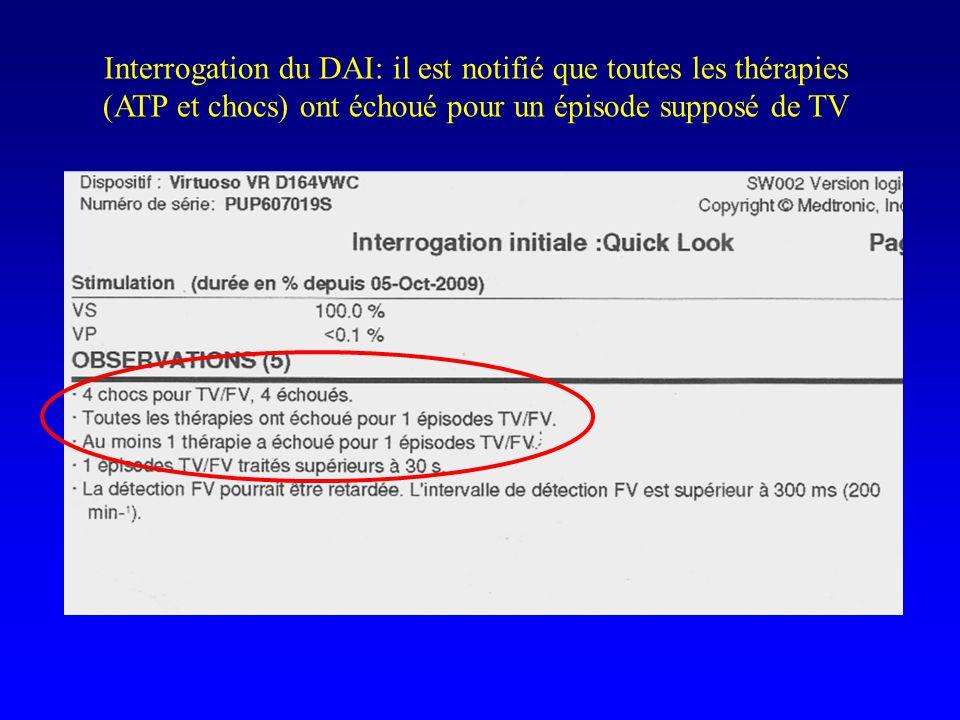 Interrogation du DAI: il est notifié que toutes les thérapies (ATP et chocs) ont échoué pour un épisode supposé de TV