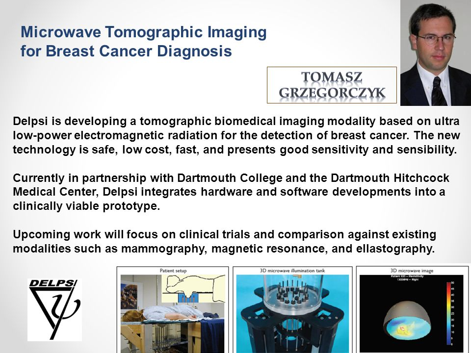 Microwave Tomographic Imaging for Breast Cancer Diagnosis
