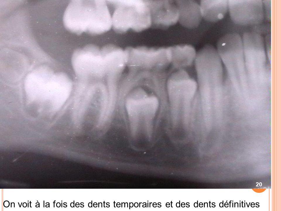 On voit à la fois des dents temporaires et des dents définitives