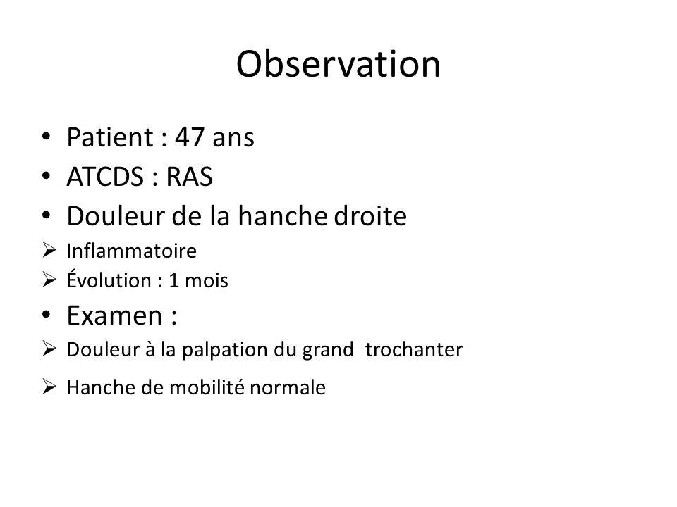Observation Patient : 47 ans ATCDS : RAS Douleur de la hanche droite