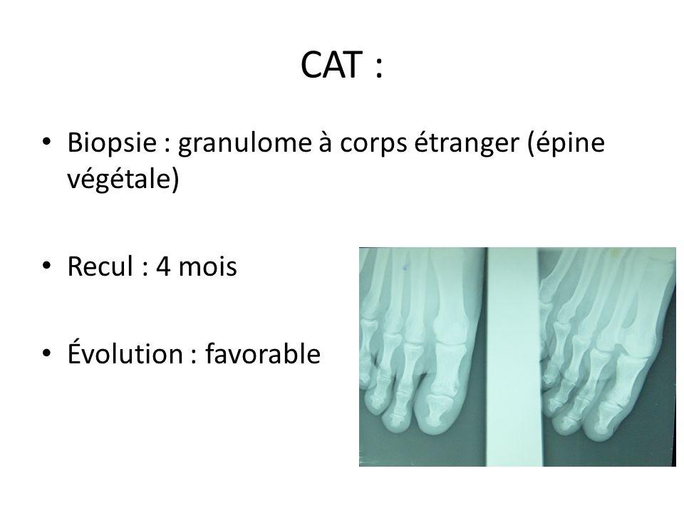 CAT : Biopsie : granulome à corps étranger (épine végétale)