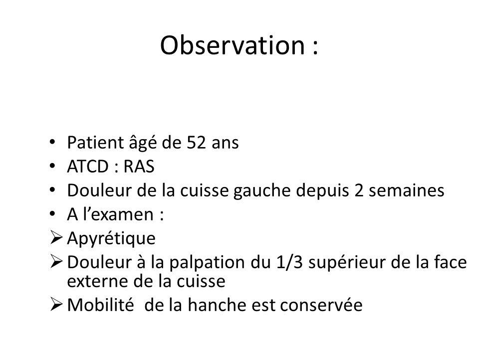 Observation : Patient âgé de 52 ans ATCD : RAS
