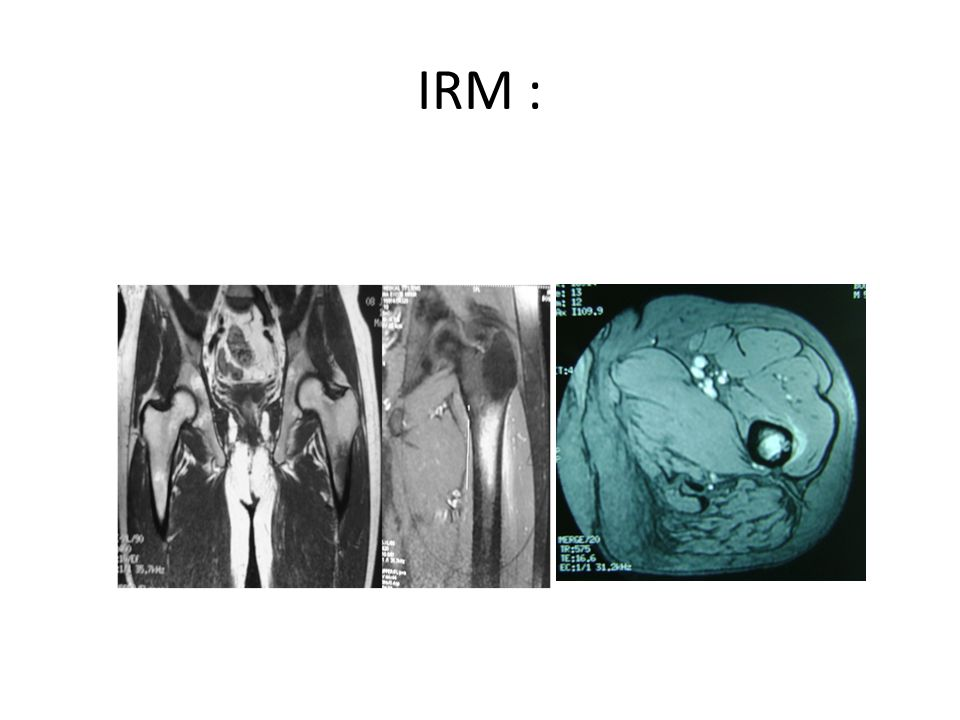 IRM :