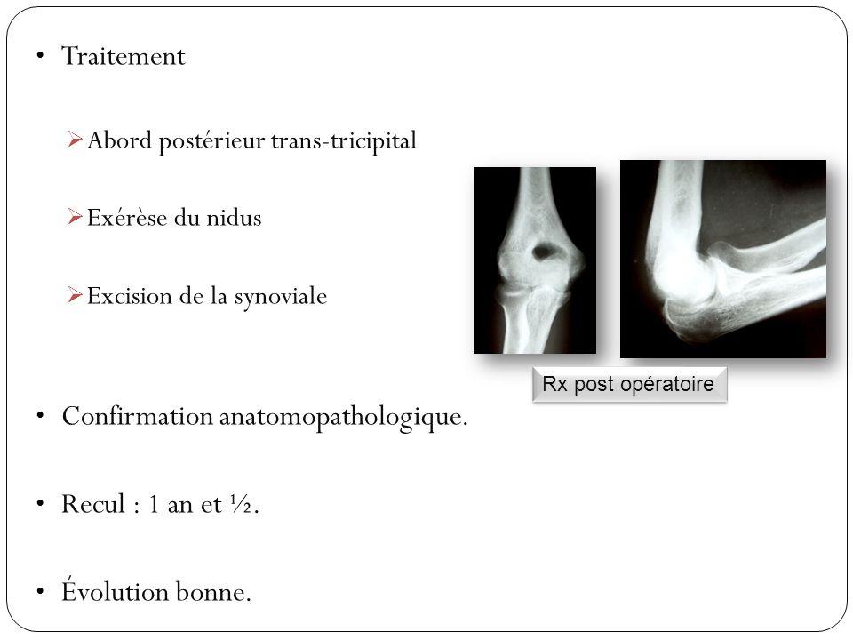 Confirmation anatomopathologique. Recul : 1 an et ½. Évolution bonne.