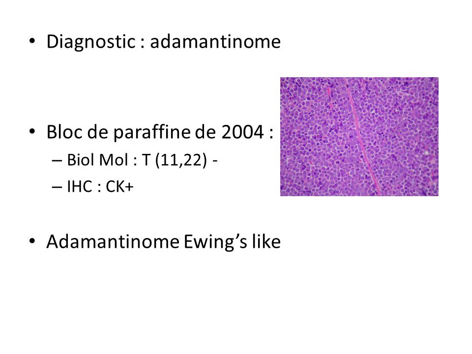 Diagnostic : adamantinome