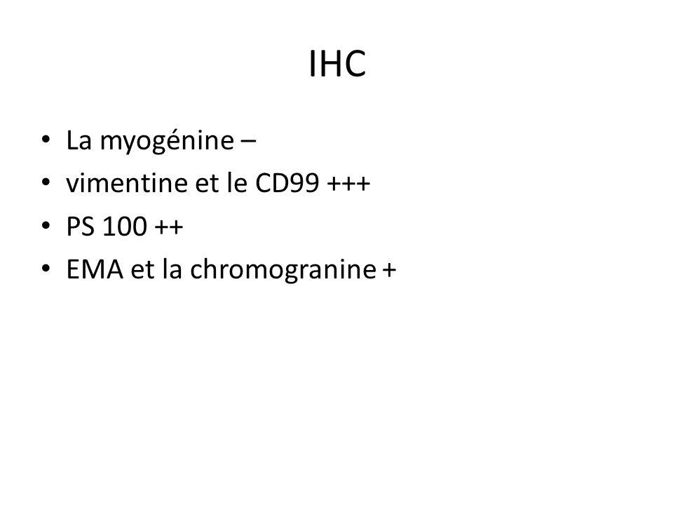 IHC La myogénine – vimentine et le CD99 +++ PS 100 ++