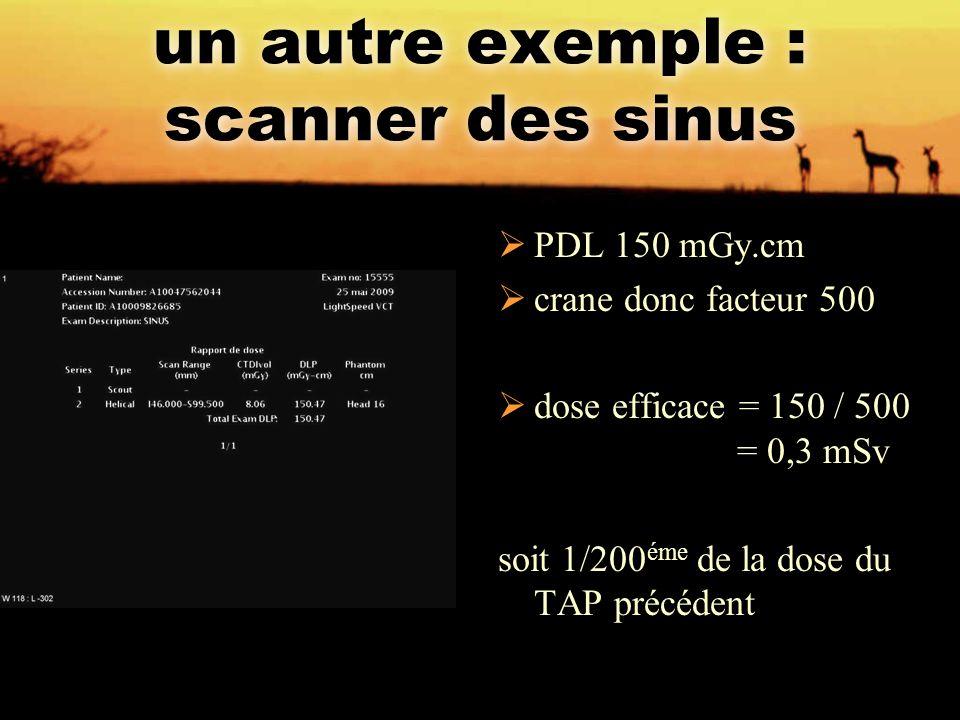 un autre exemple : scanner des sinus