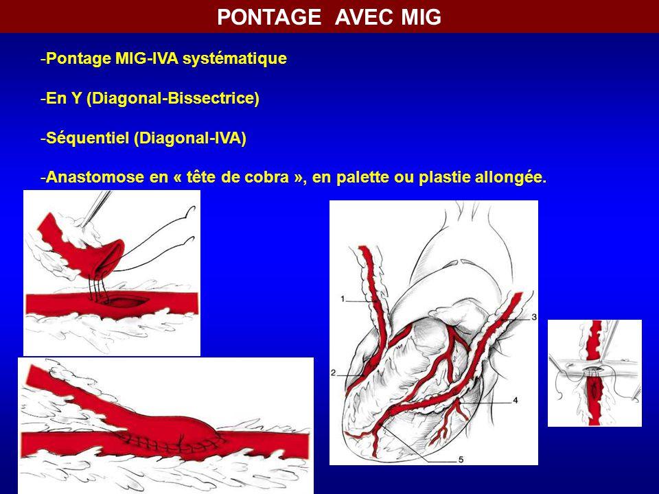 PONTAGE AVEC MIG Pontage MIG-IVA systématique