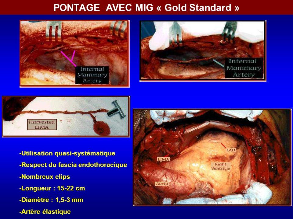 PONTAGE AVEC MIG « Gold Standard »