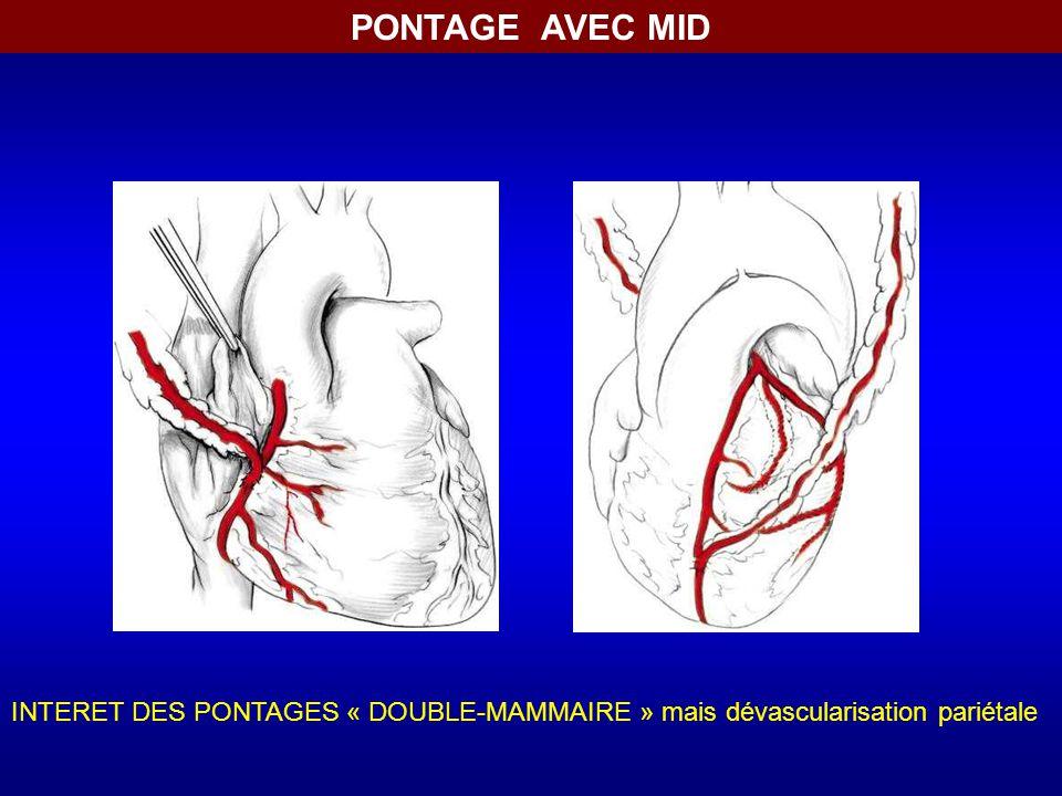 PONTAGE AVEC MID INTERET DES PONTAGES « DOUBLE-MAMMAIRE » mais dévascularisation pariétale