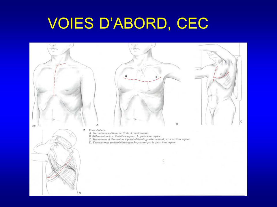 VOIES D'ABORD, CEC