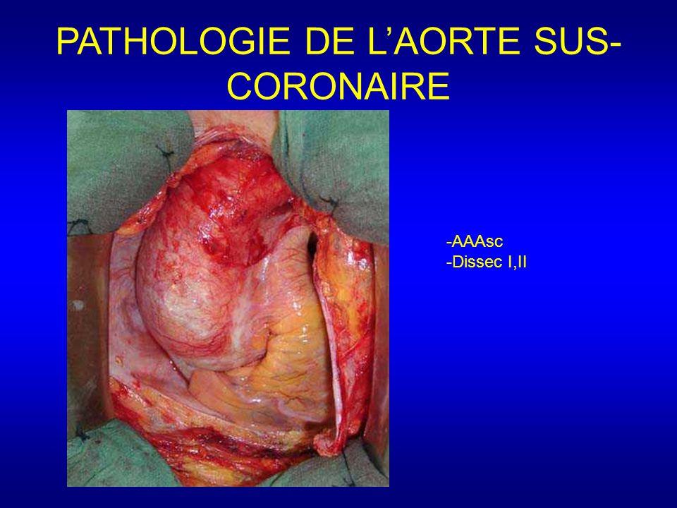 PATHOLOGIE DE L'AORTE SUS-CORONAIRE