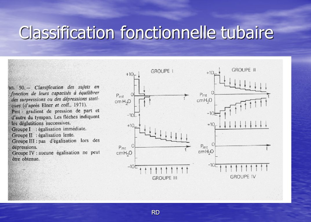 Classification fonctionnelle tubaire