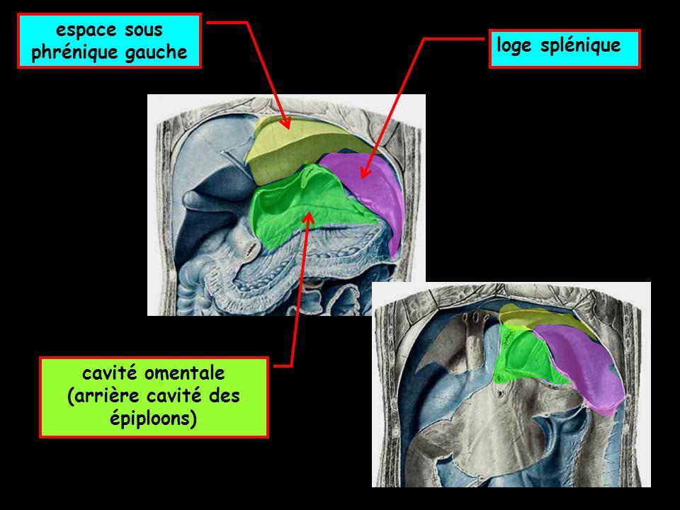 espace sous phrénique gauche (arrière cavité des épiploons)