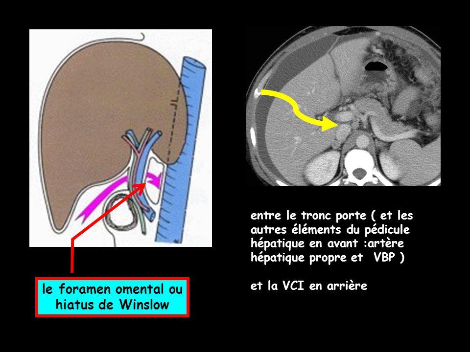 le foramen omental ou hiatus de Winslow