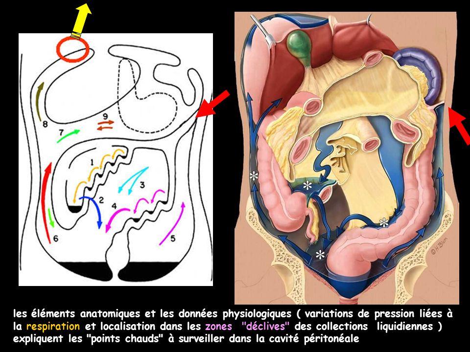 les éléments anatomiques et les données physiologiques ( variations de pression liées à la respiration et localisation dans les zones déclives des collections liquidiennes ) expliquent les points chauds à surveiller dans la cavité péritonéale