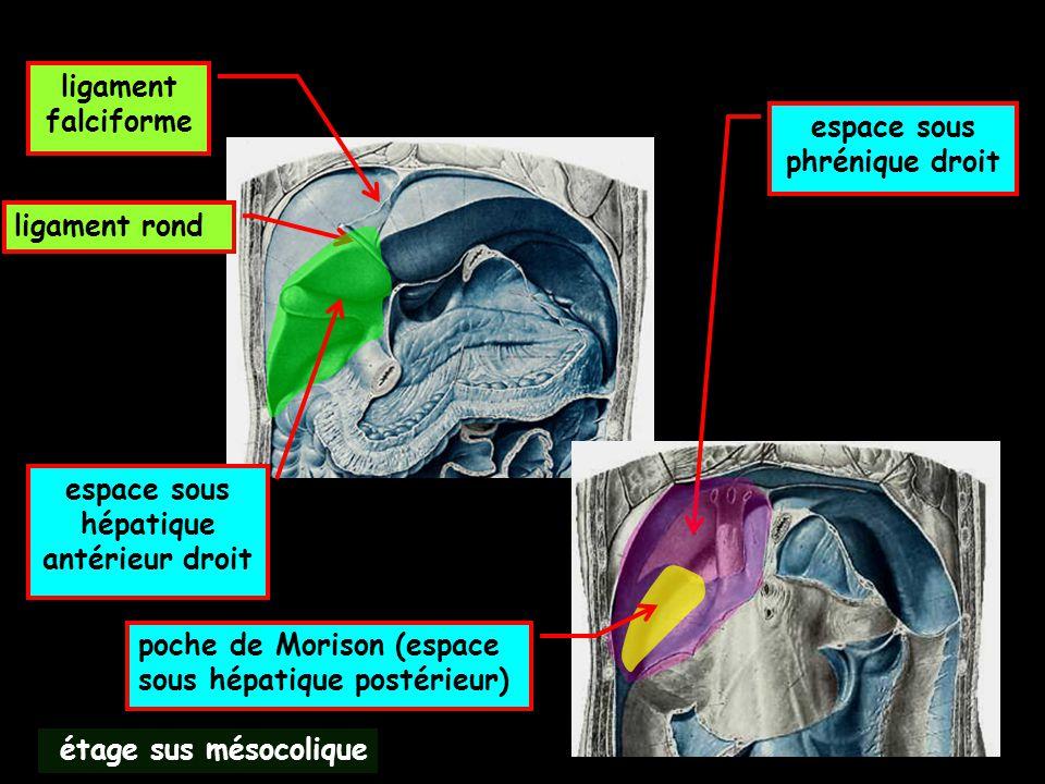 espace sous phrénique droit espace sous hépatique antérieur droit