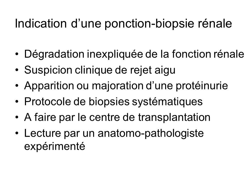 Indication d'une ponction-biopsie rénale