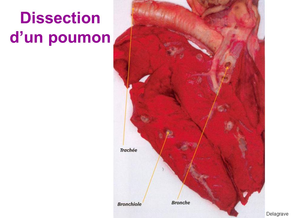 Dissection d'un poumon