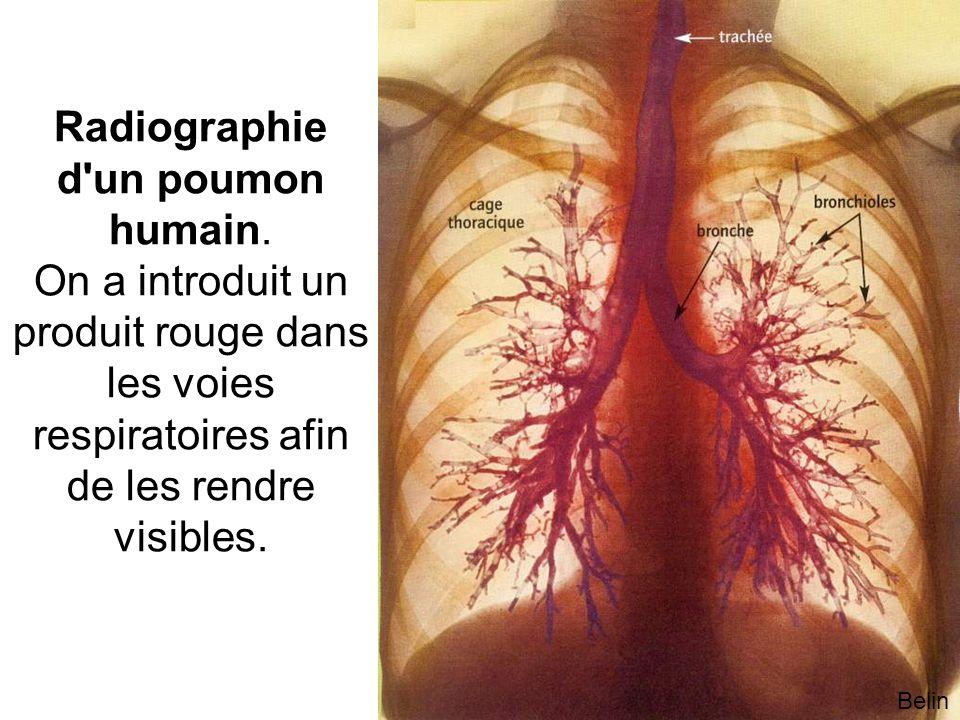 Radiographie d un poumon humain.