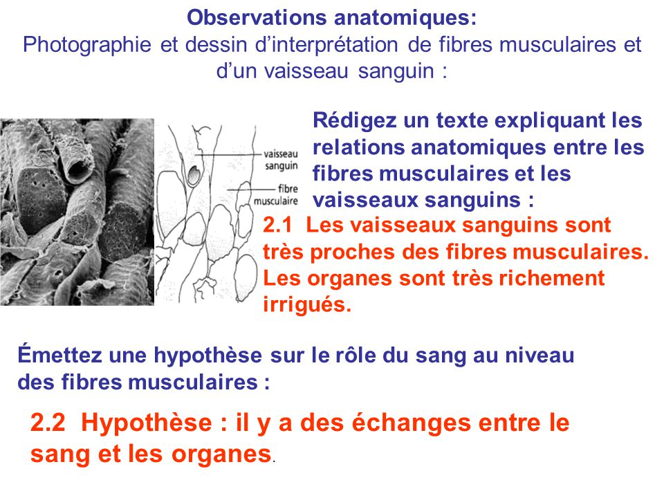 Observations anatomiques: