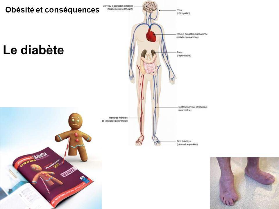 Obésité et conséquences