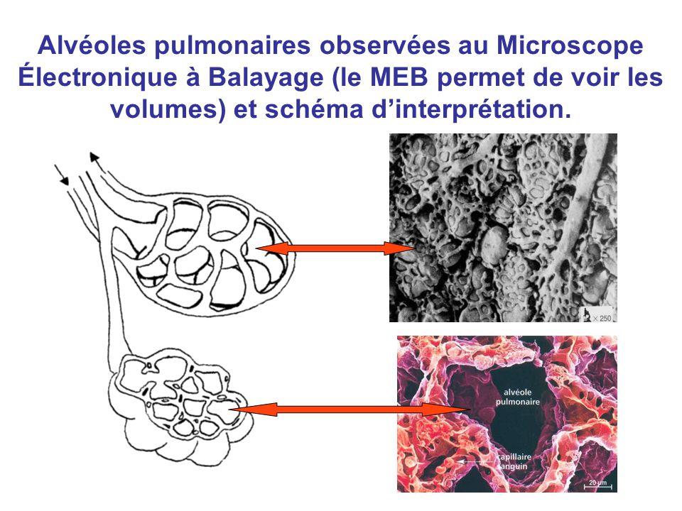 Alvéoles pulmonaires observées au Microscope Électronique à Balayage (le MEB permet de voir les volumes) et schéma d'interprétation.