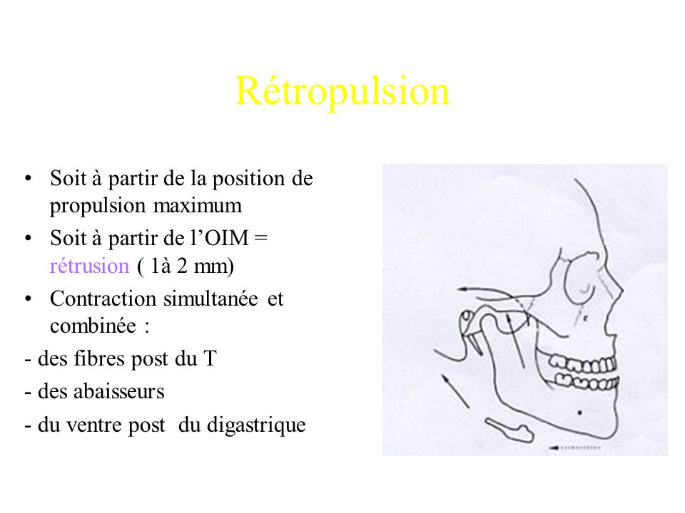 Rétropulsion Soit à partir de la position de propulsion maximum