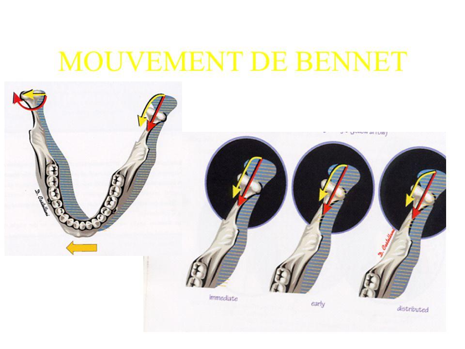 MOUVEMENT DE BENNET