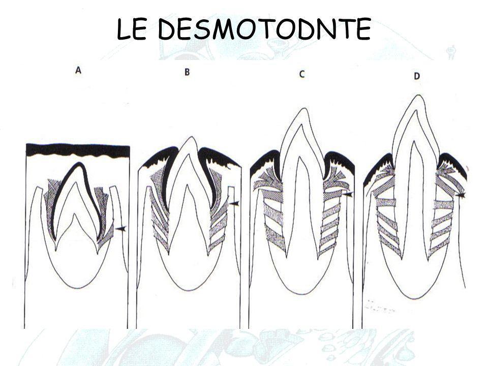 LE DESMOTODNTE