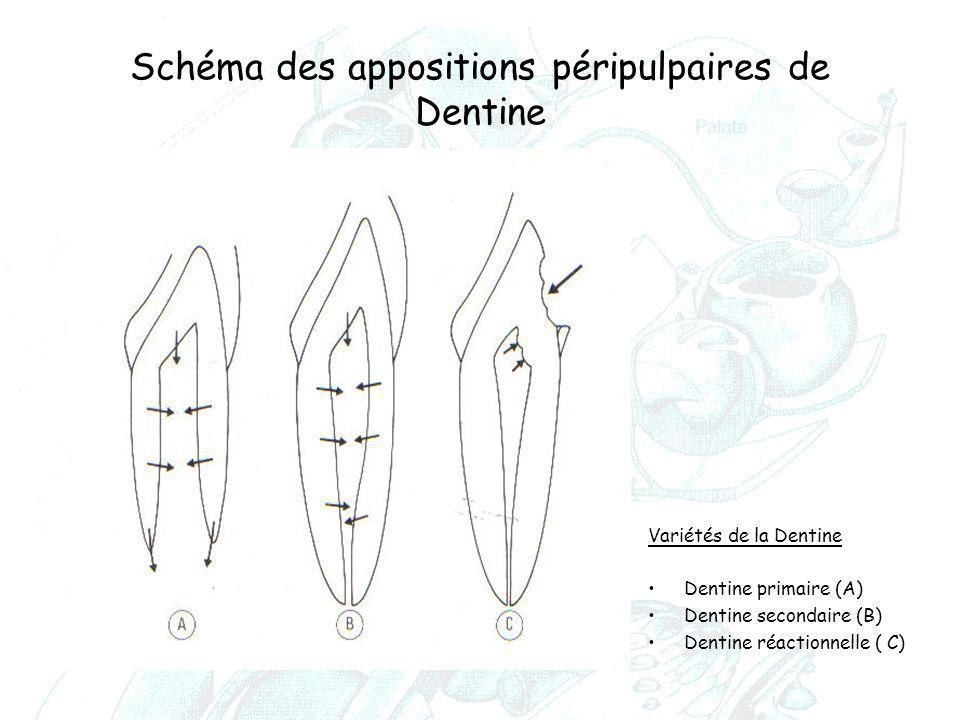 Schéma des appositions péripulpaires de Dentine