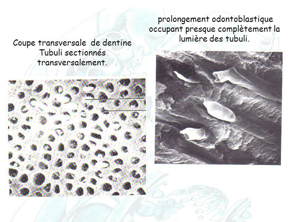 Coupe transversale de dentine Tubuli sectionnés transversalement.