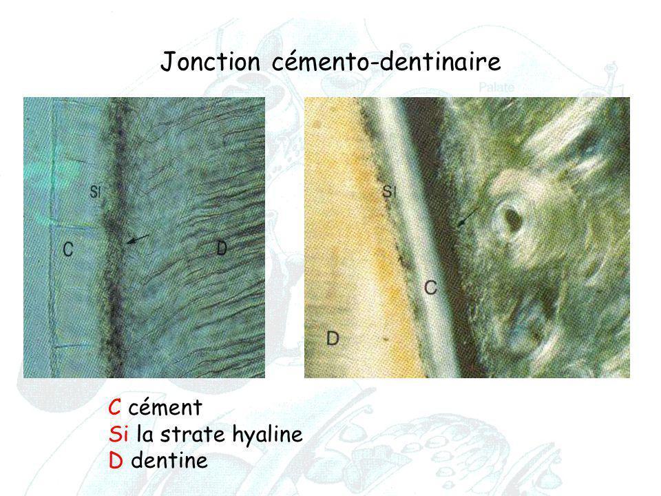 Jonction cémento-dentinaire