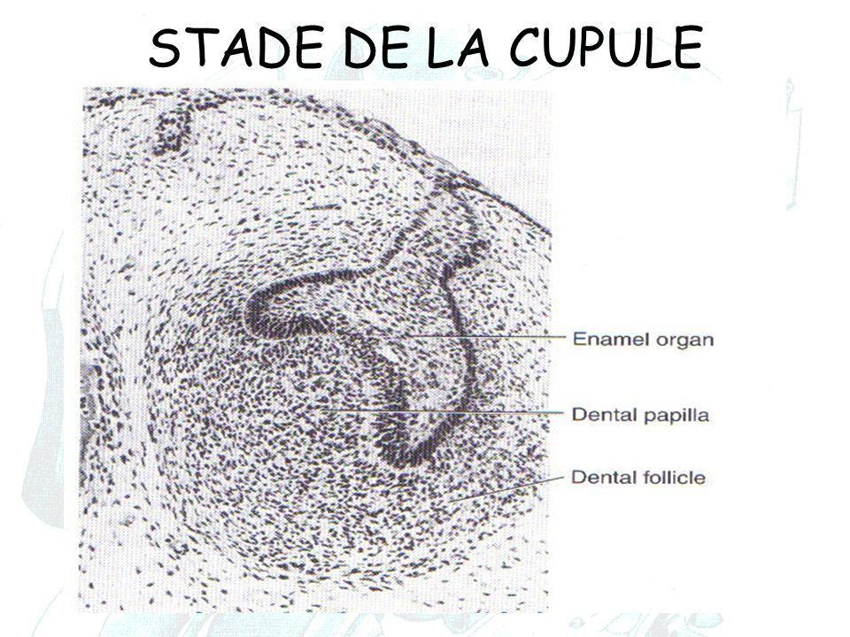 STADE DE LA CUPULE