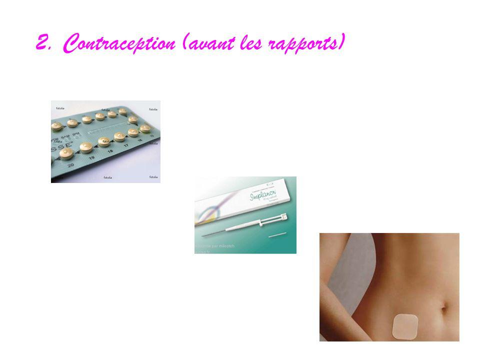 2. Contraception (avant les rapports)