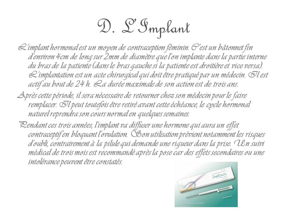 D. L'Implant