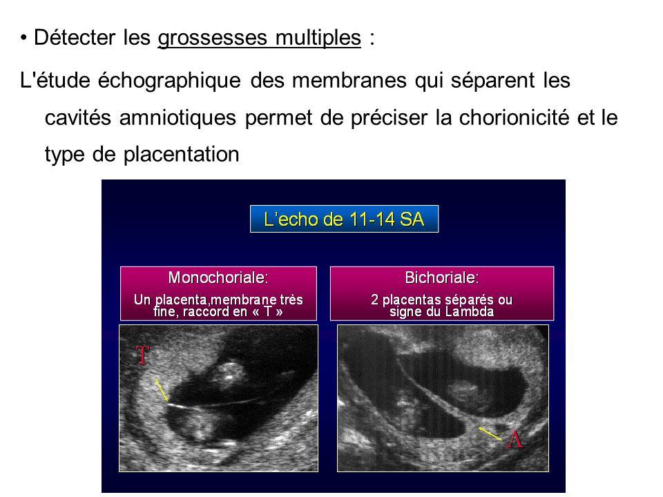 • Détecter les grossesses multiples :