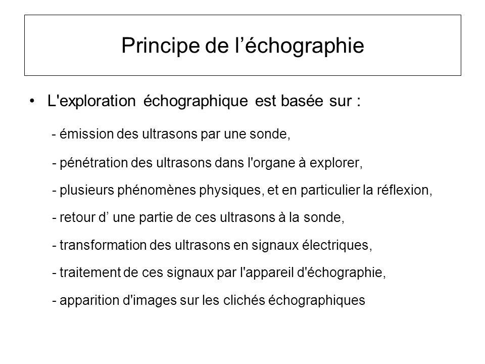 Principe de l'échographie