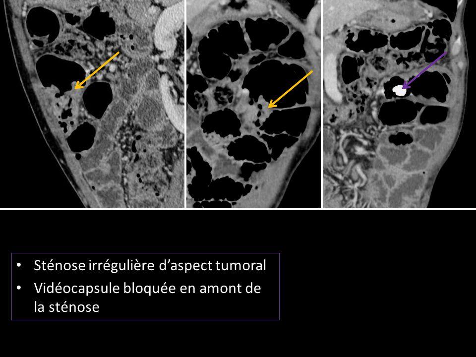 Sténose irrégulière d'aspect tumoral