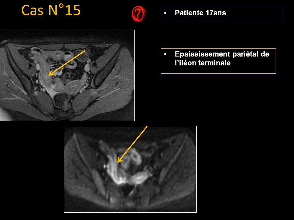Cas N°15 Patiente 17ans Epaississement pariétal de l'iléon terminale